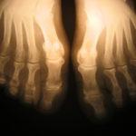 Fibromialgija in zanjo značilni simptomi